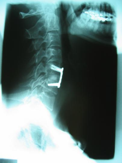 Cervical Fusion, C5/C6; side view